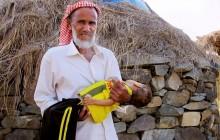 سوغات عربستان، سوء تغذیه تا مرگ برای کودکان یمن