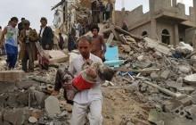 در جنگ یمن بیش از 7500 کودک یمنی کشته یا زخمی شده اند