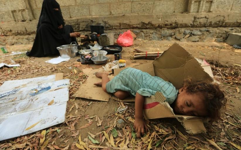 جهان باید چشمان خود را به مصایب یمن باز کند