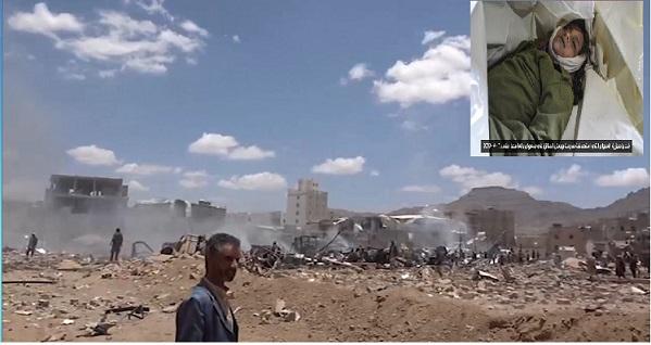 کشتار کودکان و شهروندان بی دفاع یمنی در حمله ائتلاف سعودی